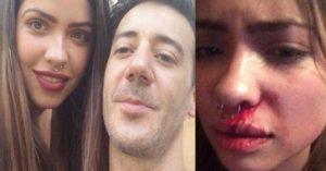 Los medios de comunicación y la banalización de la violencia contra las mujeres